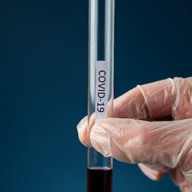Hand of a doctor wearing protecting glove holding a glass test tube with blood sample and a Covid 19 sign on it.